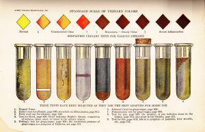 Standard Scale of Urinary Colors, Health Knowledge, 1928 by Carin Rhoden in Flikr CC BY-NC-ND 2.0