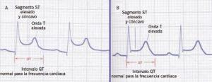 Ortigado fig.4_opt ECG PEdiatria Integral derechos reservados