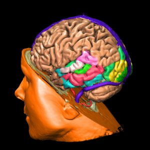 pseudomor cerebri